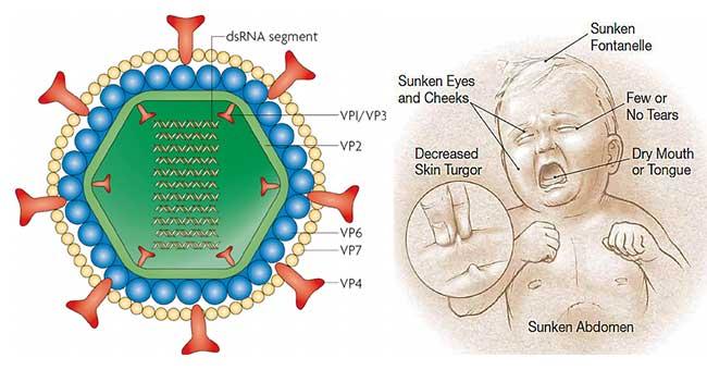 Rotavirus: une préoccupation pour les nourrissons et les jeunes enfants