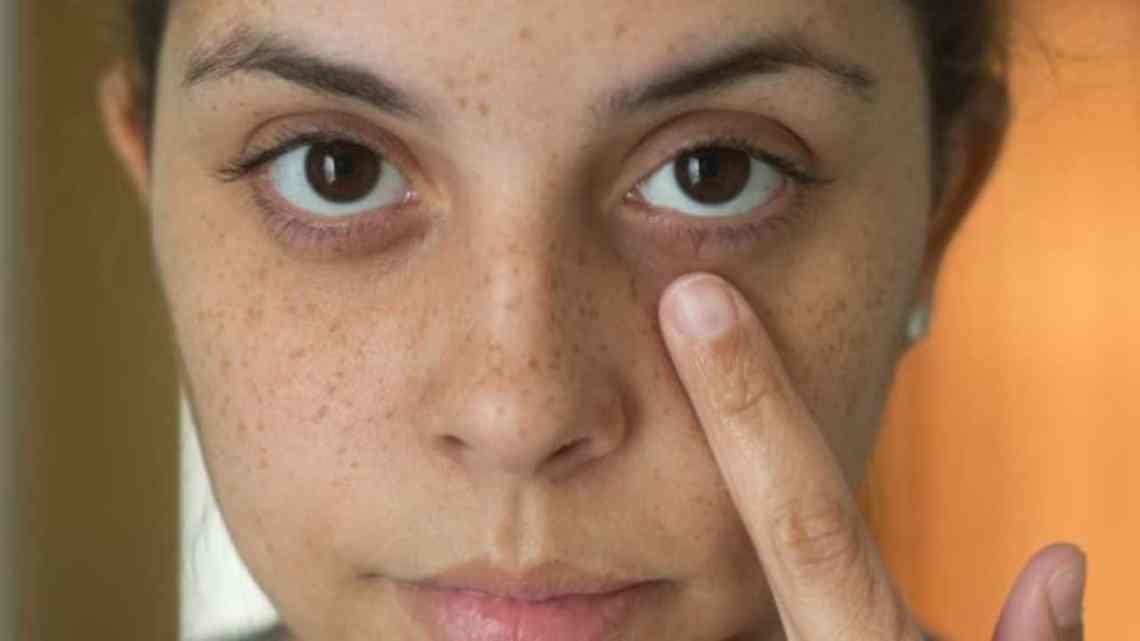 Comment se débarrasser naturellement des cernes sous les yeux