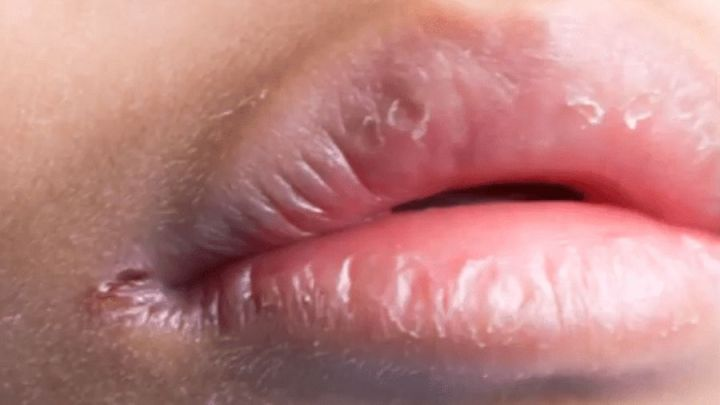 Éliminer les fissures au coin de la bouche ou la chéilite angulaire