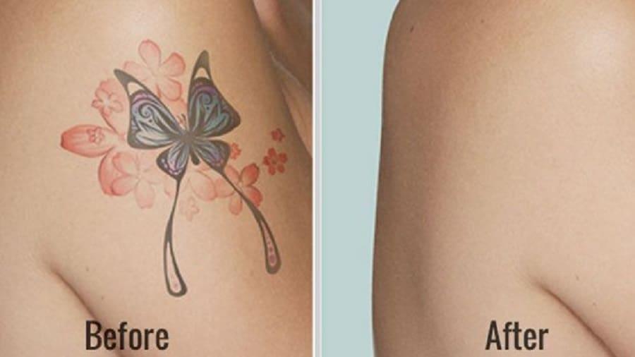 Conseils pour éliminer rapidement les tatouages à la maison – Comment retirer un tatouage
