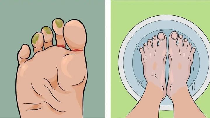 Comment traiter le pied d'athlète à la maison avec des remèdes naturels et l'empêcher de se reproduire