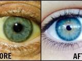 Comment obtenir des yeux blanc? 9 conseils pour rendre vos yeux clairs, brillants et blancs