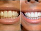 Comment blanchir vos dents rapidement à la maison : 5 remèdes naturel
