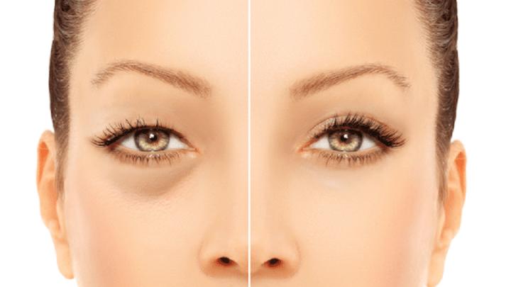 Comment se débarrasser des poches ou les cercles sous les yeux