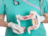Remèdes maison efficaces pour l'appendicite