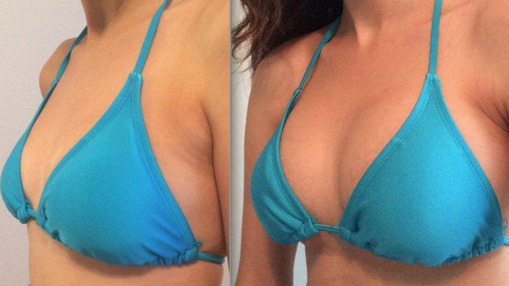 Comment augmenter la taille des seins naturellement