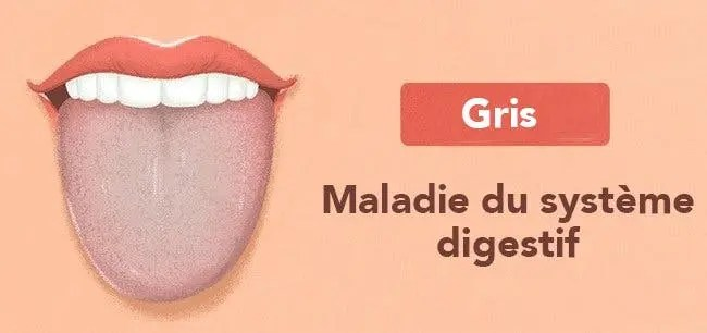 Les 13 choses que votre langue essaye de vous dire au sujet de votre santé