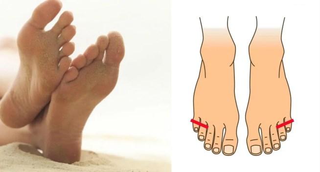 formes de pieds