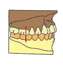 """Résultat de recherche d'images pour """"antagonisme dentaire"""""""