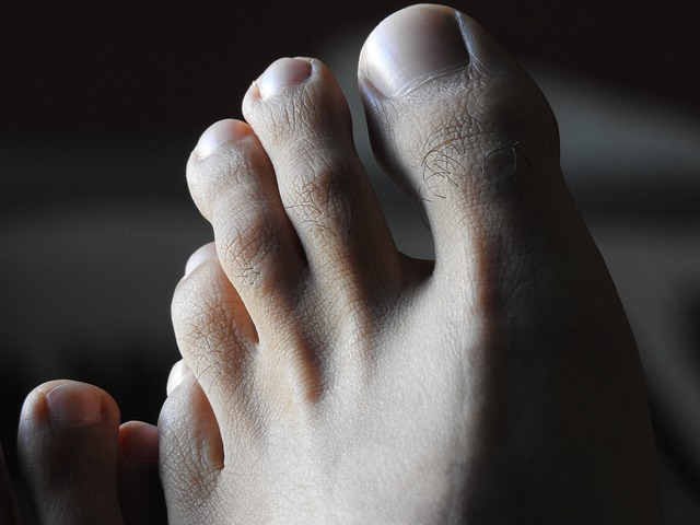 foot faults