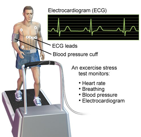 Image result for treadmill test""