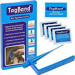 Review of the TagBand skin tag removal device