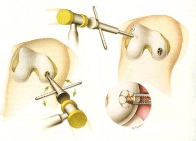 Image of Mosaicplasty surgery on knee