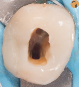 IES - immediate Endodontic sealing