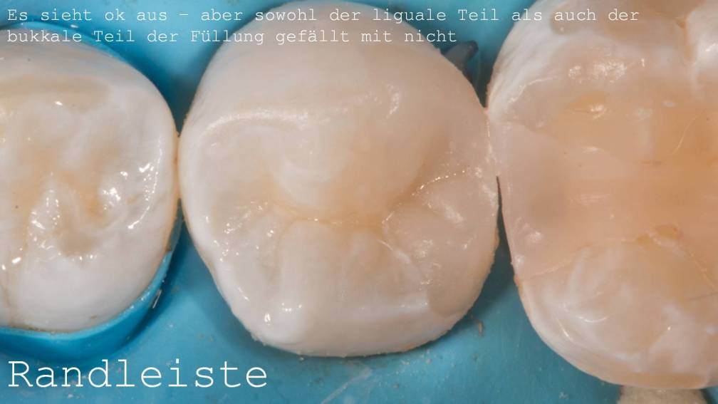 Randleiste Zahn Komposit