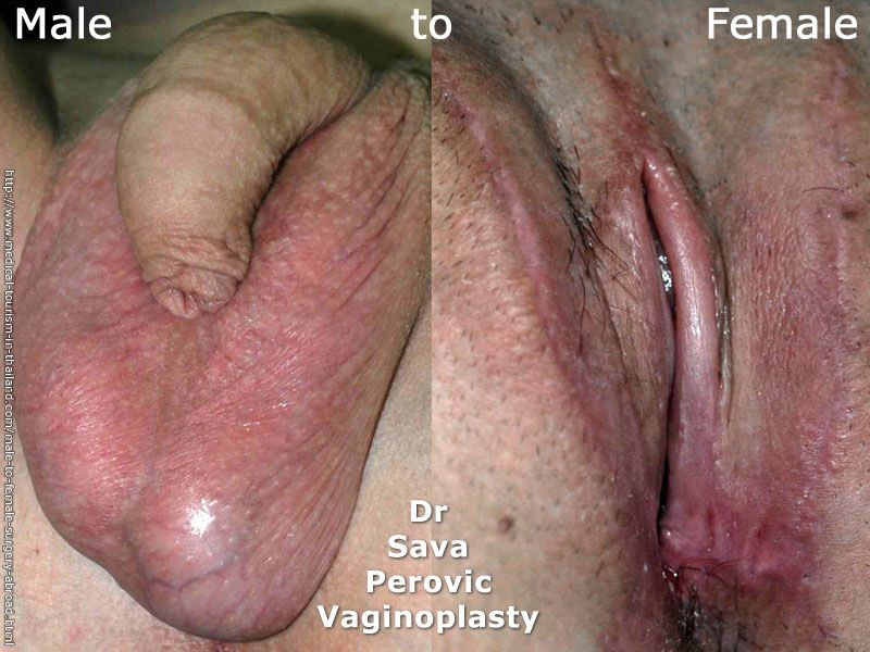 Nude men with vaginoplasty photos