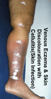 Venous Eczema