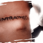 Intrathecal tattoo