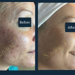 acne-before-after-2-2