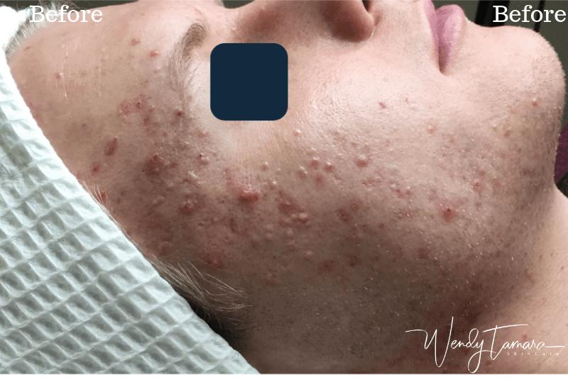 adult acne program