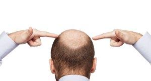 Kako spriječiti ćelavost (alopeciju)