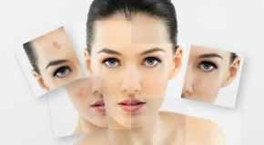 Savjeti i preporuke za borbu protiv akni