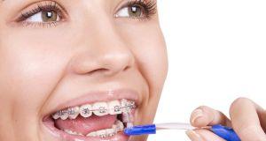 Aparatić za zube za savršen izgled lica