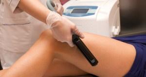 Dermaroller učinkovito uklanja ožiljke