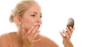 koja hrana izaziva akne