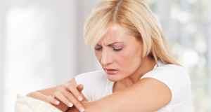 Kako spriječiti lišaj na koži