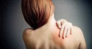 Cervikobrahijalni sindrom
