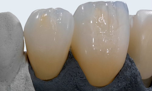 Zahnersatz