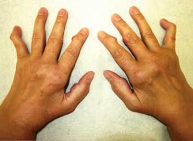 Arthritis Rheumaschmerzen
