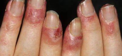 lupus fingernägel