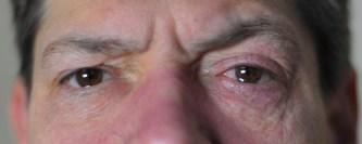 Clusterkopfschmerz-Anfall