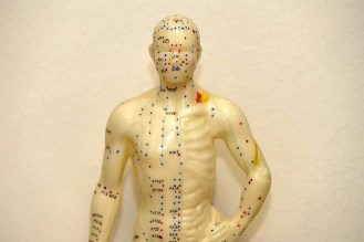 Akkupunktur Trigger