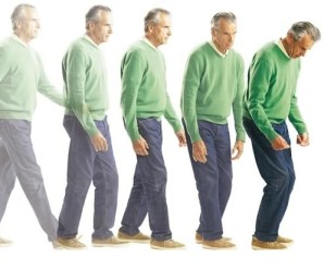 Parkinson's stages: Signs and symptoms