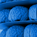 Reading the Brain: FDA Approves First Scan for Diagnosing ADHD