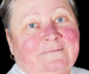 Malar Rash: Causes, Symptoms, Treatment, Picture, and More