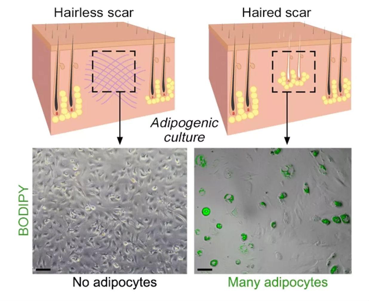 scar-hair