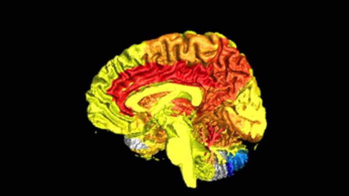 腦血液活動