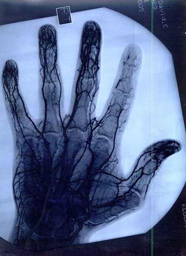 Hand blood vessels
