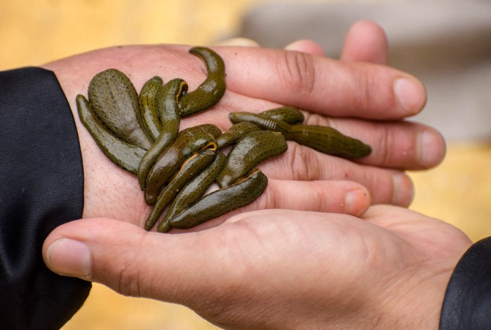 A woman receives leech therapy on her hand. (Getty Images/Yawar Nazir)