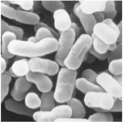 ESCHERICHIA COLI is a type of bacteria that lives in the intestinal tract, aiding the digestive process by suppressing the growth of harmful bacteria and synthesizing vitamins. (© 1997 Custom Medical Stock Photo. Reproduced by permission.)