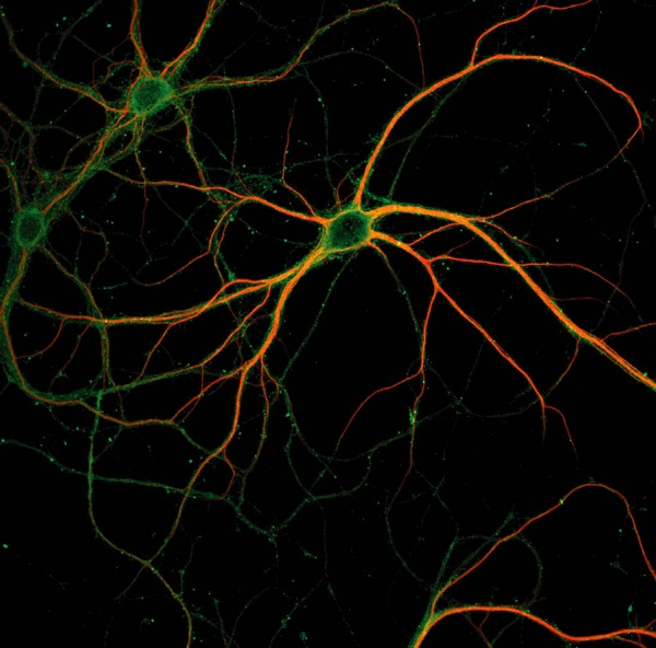 Photograph of a stained neuron