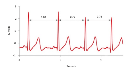 Figure 1 - Heart Rate Variability