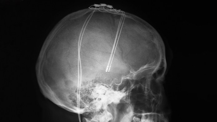 X-ray of electrodes in the brain of a patient with Parkinson's disease