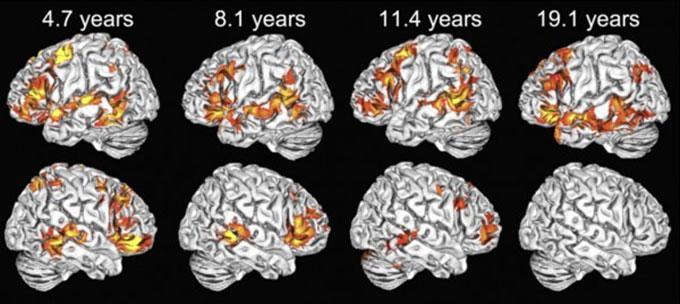 Brain MRIs