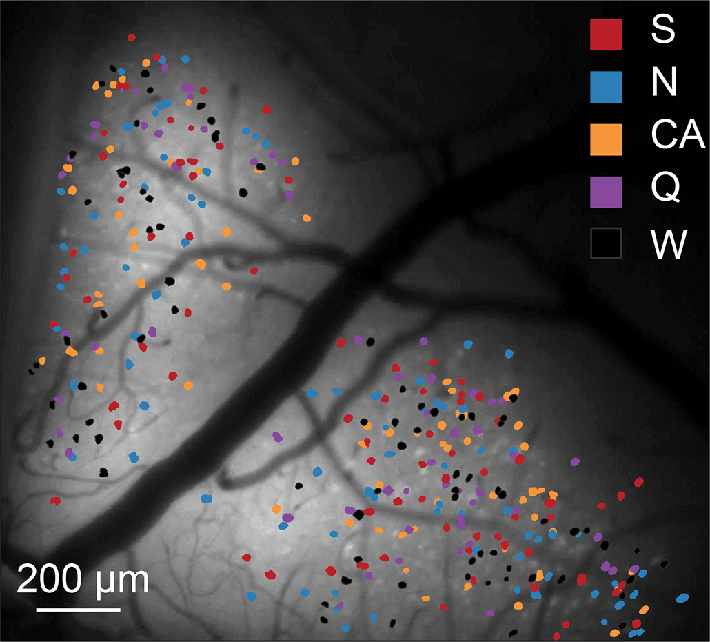 an image of a mouse's taste center in the brain, with many different colored dots scattered across the image