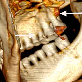 Het gebit van Ötzi. De pijl links wijst naar cariës. De pijl rechts naar het sterk aangetaste bot door toedoen van parodontitis. Afbeelding: UZH.
